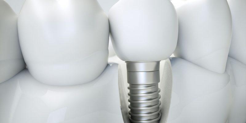 odontologia2_implantes