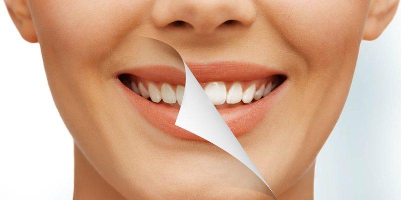 odontologia3_sonrisa