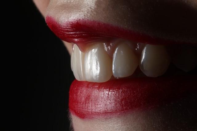 tratamientos-estetica-dental-odontomedic